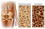 Osteoporosis – Overview and diagnosis