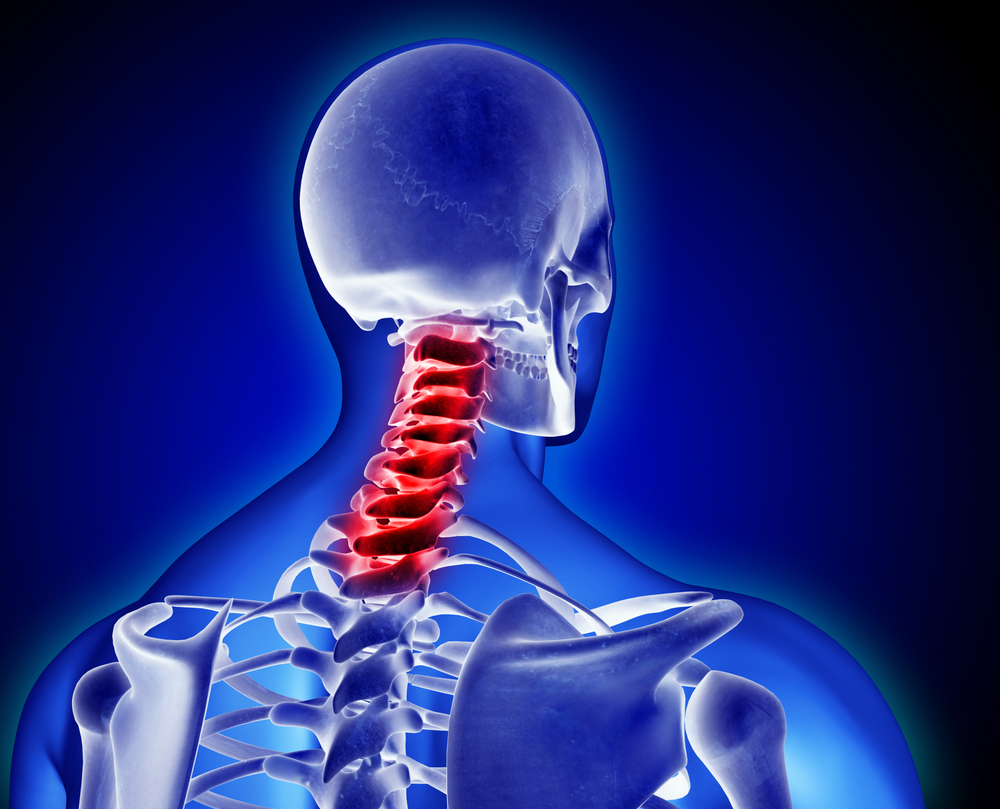 Stop Slouching Stop Neck Pain West Fourth Physiotherapywest