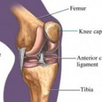 Knee update... The ACL and it's link to osteoarthrosis