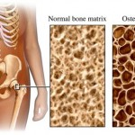 Osteoporosis - Overview and diagnosis